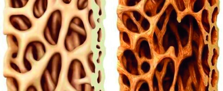 Osteoporoza – atakuje również mężczyzn